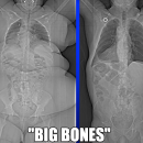 "Are you ""Big Boned""?"